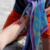 Shark Attack Suspected in Florida