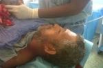 Shark bites Fisherman in Dominican Republic