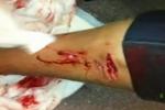 Shark Attack at Maroubra Sydney New South Wales  Australia