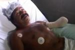 News Video: Shark attacks fisherman in Guerrero Mexico