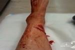 Volusia Shark bite victim speaks about attack
