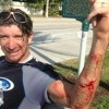 Delray kite boarder bitten by shark