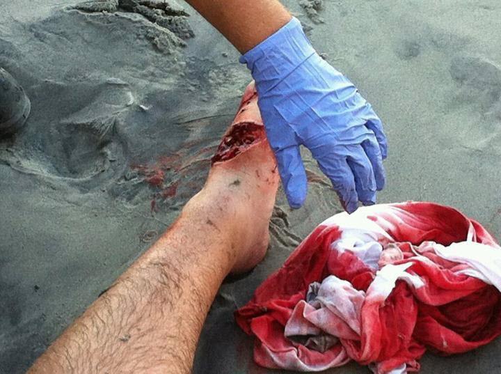 Shark Attack At Myrtle Beach